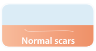 normal_scars