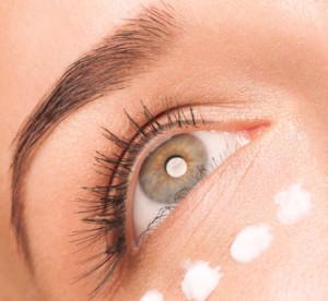 eyes with scar cream