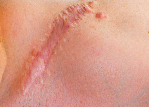 hypertrophic scar, scar cream