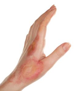 second degree burn wound
