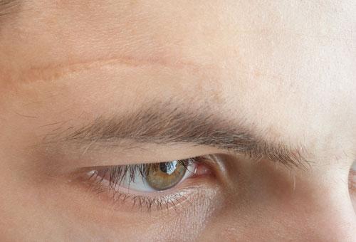 Scar in face