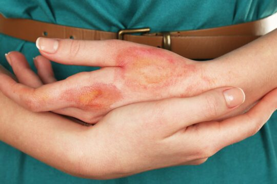 Preventing scars after a burn wound