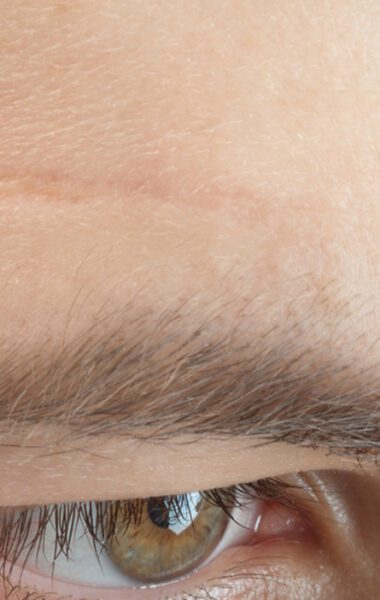 Can I remove facial scars with scar cream