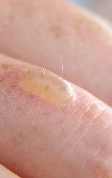 How do you treat a burn blister?