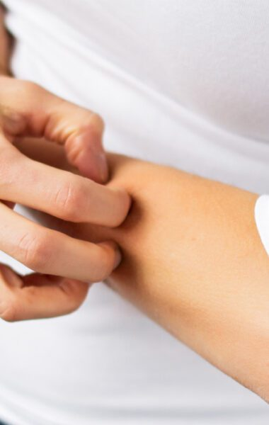 Itching scar? What can you do about it?