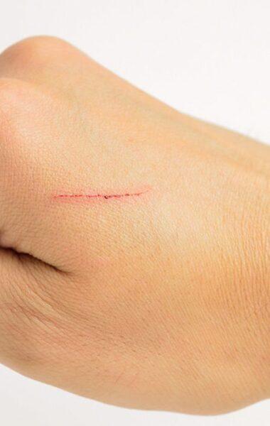 Remove small scars with scar cream