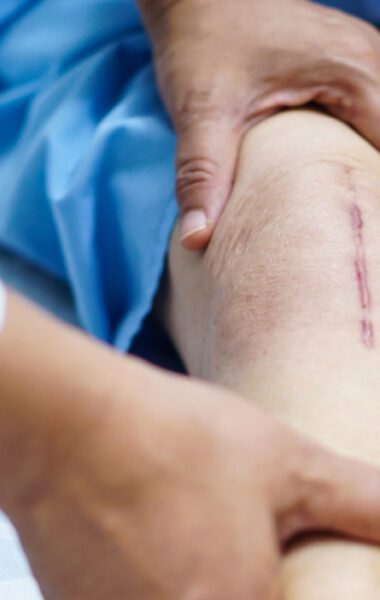 Best treatment for scar pain