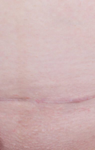 How to care for a caesarean scar