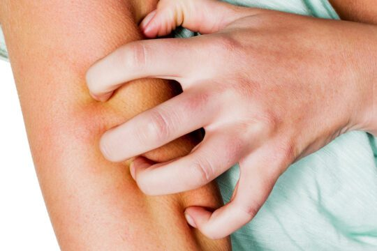 Skin rashes with itching and red patches