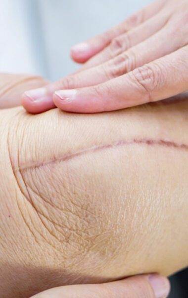 Healing a surgical scar
