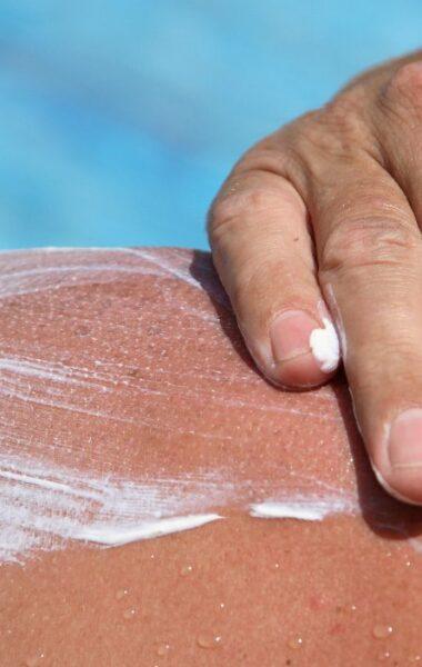 Suntan lotion on a scar