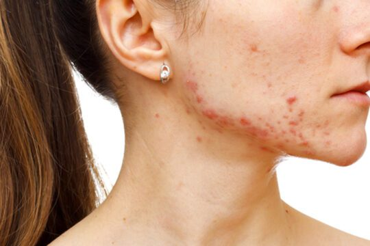 Remove acne scars: practical tips for home treatment