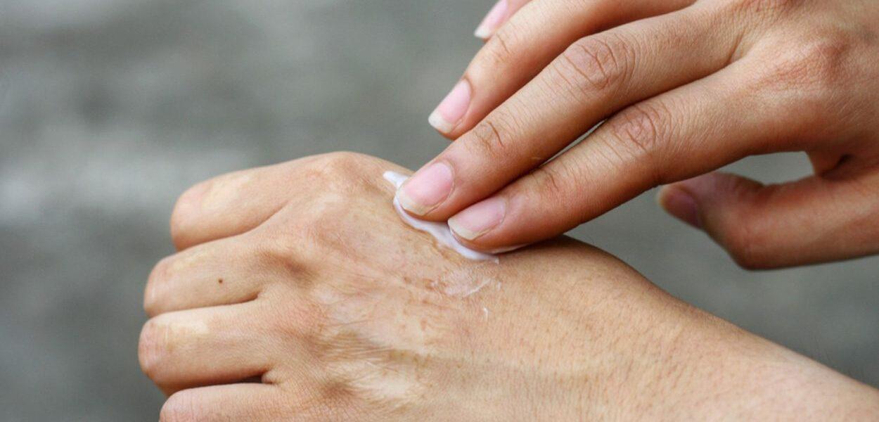 ALHYDRAN the cream against scars