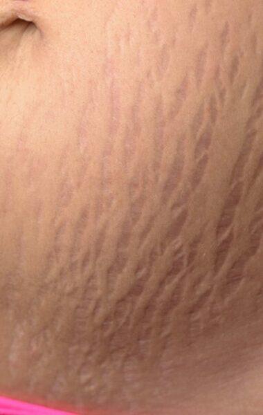 ALHYDRAN stretch mark prevention cream