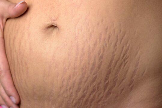 Reducing pregnancy stretch marks